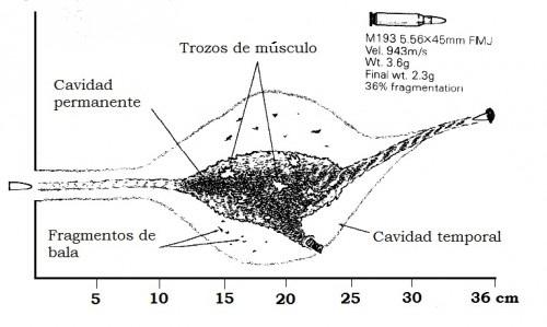 herida causada por un proyectil fragmentado M 855 ó 5,56mm OTAN