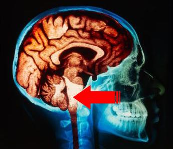 Localización del tallo cerebral en el interior del craneo.