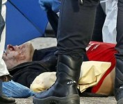 atracador herido de bala