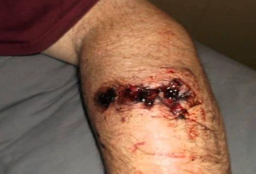 Herida en antebrazo provocada por un disparo accidental