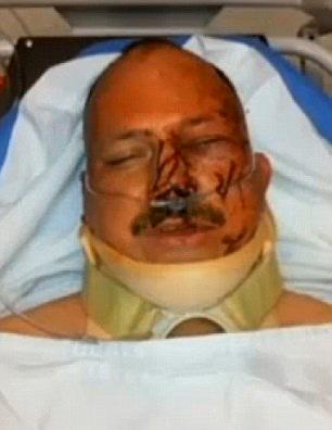 lesiones producidas a un policia en la cara